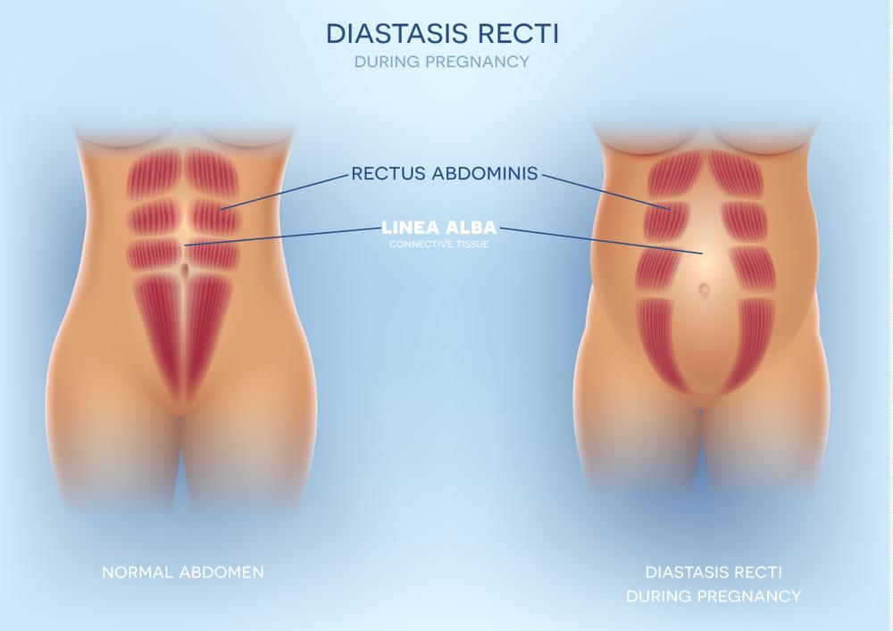 Bebizonyították: a szoptatás karcsúsít | nlc